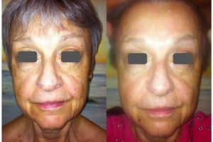 Before After facelift photo