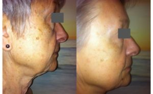 Before and After Jade Rejuvenating Non-Surgical Facelift